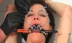 Facial extreme needleplay